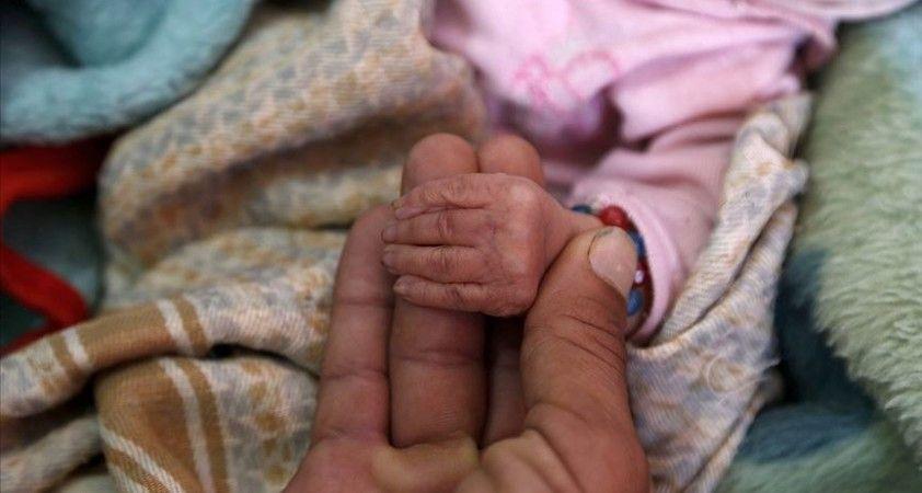 Sudan ve Yemen'de çocuk felci salgını yayılıyor