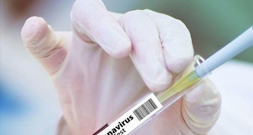 Oxford Üniversitesinin deneyi başarılı olursa Brezilya 100 milyon doz Kovid-19 aşısı alacak