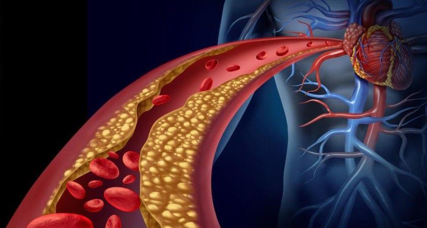 Yüksek kolesterollü hastalara yeni umut: Kolesterol aşısı