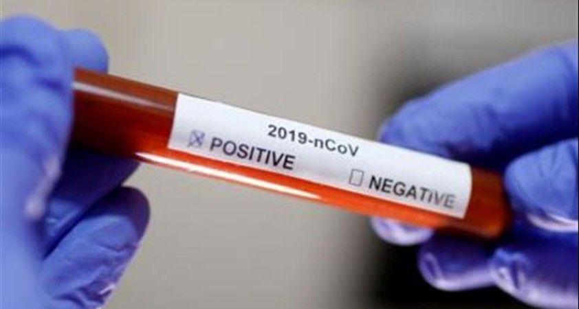 ABD'de koronavirüsünden ikinci Türk hayatını kaybetti