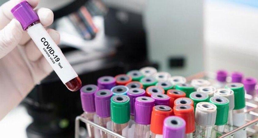 Hamilelere ilaç uyarısı: ''Korona pozitifseniz verilen ilaçları kullanın''